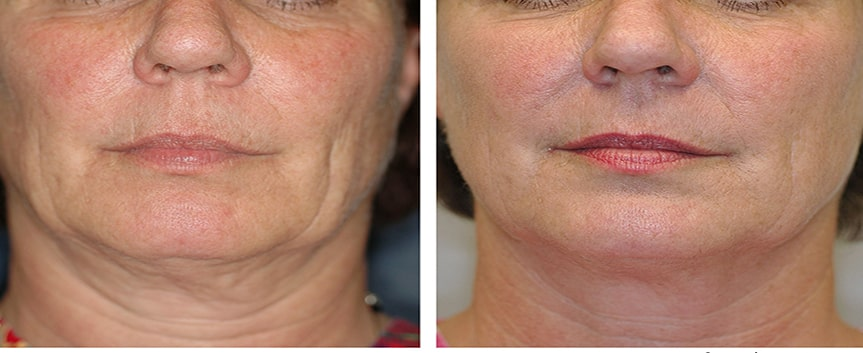 جوانسازی پوست صورت با ترماژ و اکسیلیس