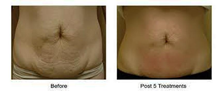 نتایج قبل و بعد از سفت کردن پوست شکم بدون جراحی