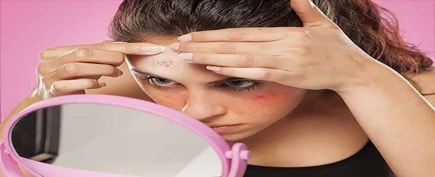 درمان ها متداول جوش صورت