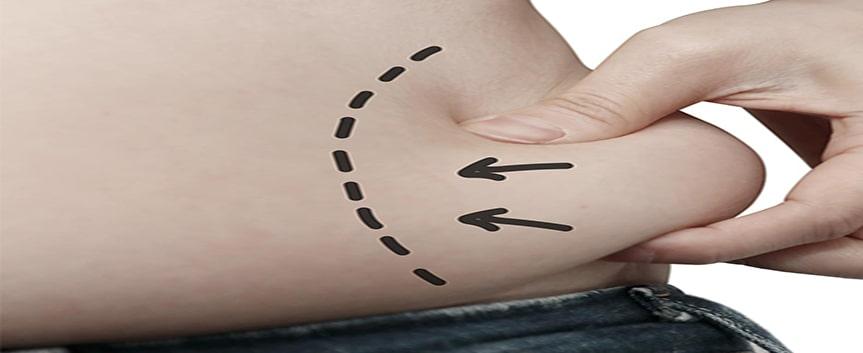 داشتن حداکثر شرایط برای خارج کردن چربی های اضافه بدن  با جراحی