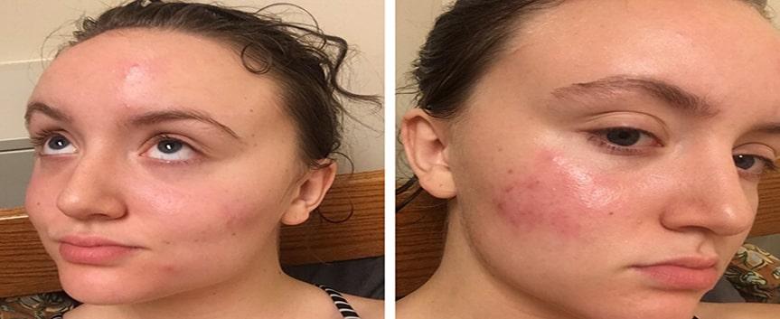 تشخیص جوش های صورت با نظر پزشک متخصص انجام می شود