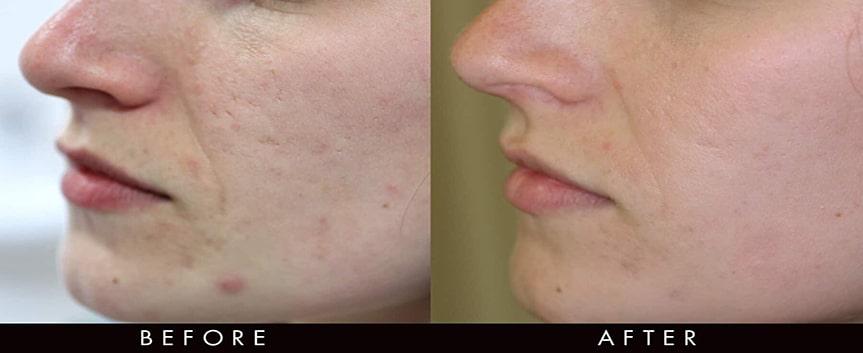 تاثیرات آر اف درمانی بر چین و چروک و جای جوش روی پوست صورت