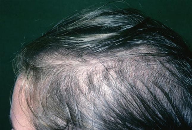الگوی ریزش موی زنان